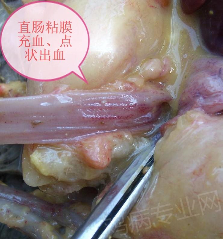 直肠粘膜充血、点状出血.jpg