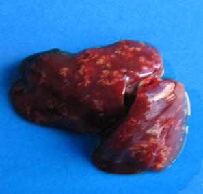 弧菌性肝炎2.png