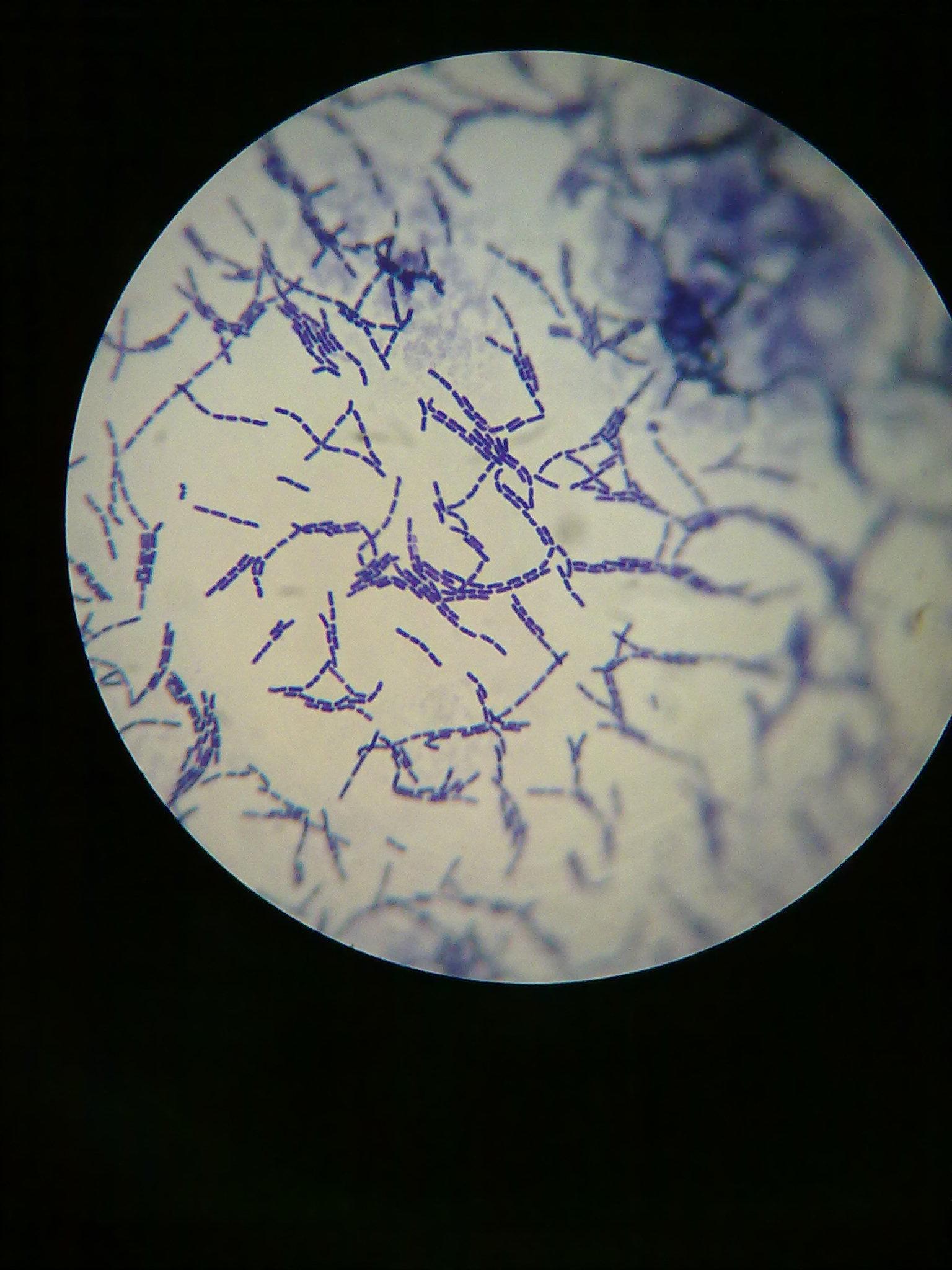 枯草芽孢杆菌如何做好革兰氏染色?具体步骤?谢谢!